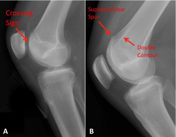 Trochlear Dysplasia   Knee Pain   Colorado Knee Specialist