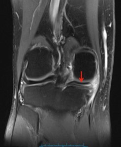 Longitudinal Tear of Posterior Horn of Medial Meniscus