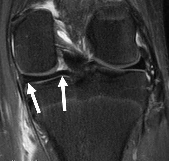 Coronal MRI of Normal Posterior Horn of Medial Meniscus
