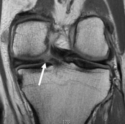 Medial Meniscus Root Tear