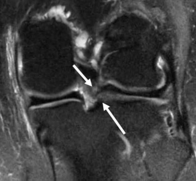 Corona MRI with Lateral Meniscus Root Tear