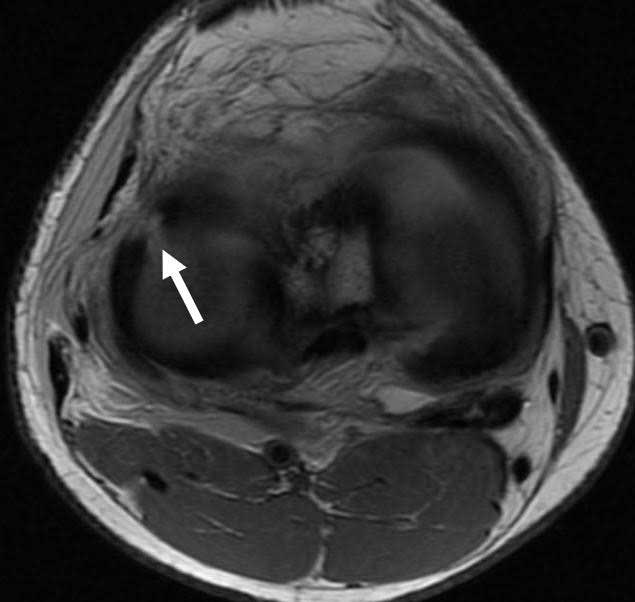 Lateral Meniscus Radial Tear
